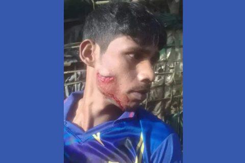 উখিয়ায় শরনার্থী ক্যাম্পে রোহিঙ্গাদের দুপক্ষের সংঘর্ষে নিহত-২ : আহত-২০ : নিয়ন্ত্রণে টহল জোরদার