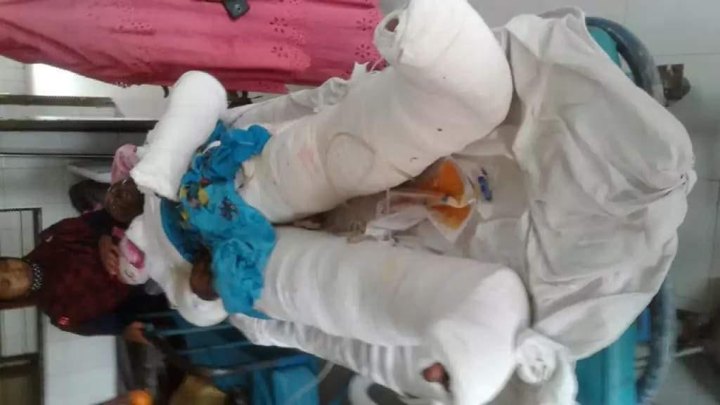 বাঁচার স্বপ্ন ছিল, বাঁচতে পারেনি : পেকুয়ায় গ্যাস সিলিন্ডার বিস্ফোরণে আহত দিনমজুরের মৃত্যু