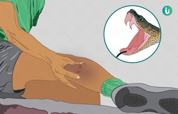 যুগান্তকারী আবিষ্কার : ট্রায়ালের পথে সাপে কাটা রোগীর জন্য Tablet